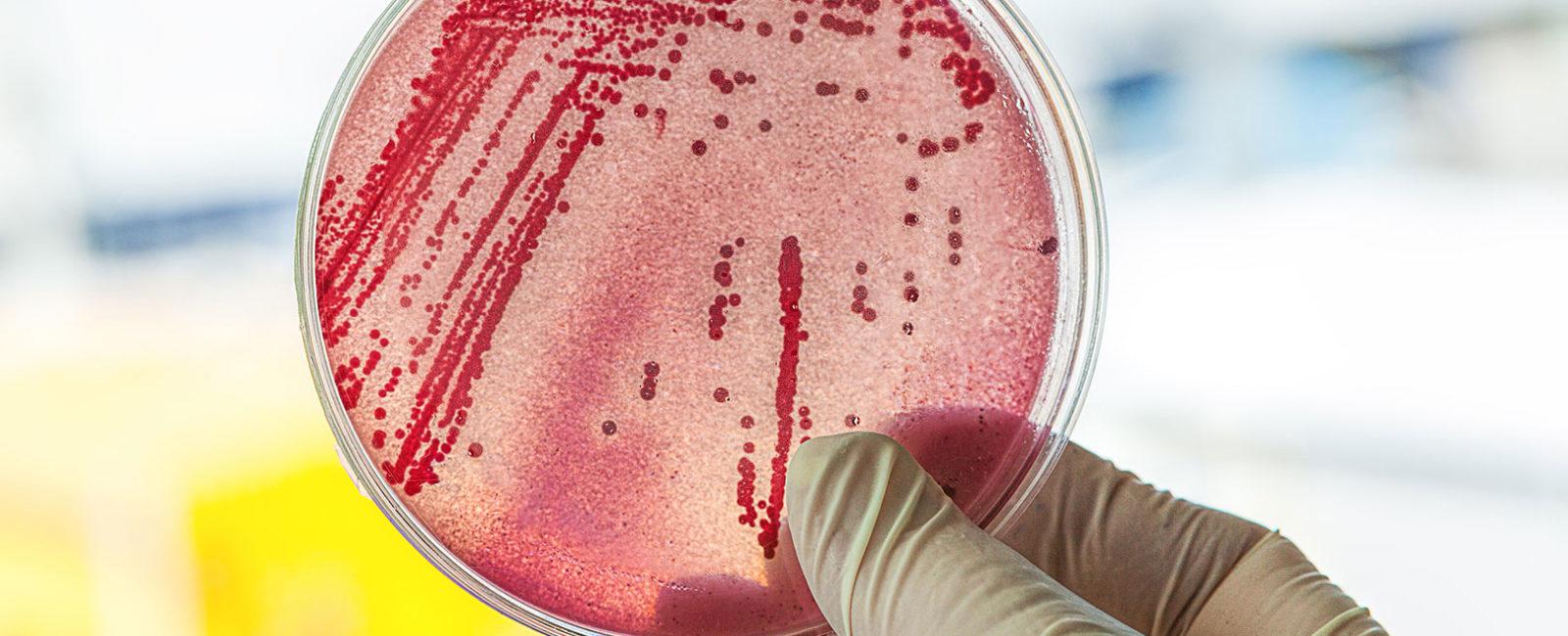 E-coli-Bakterien - das machen sie im Darm